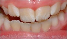 แปรงฟันมากไปเสี่ยงภัย ฟันตกกระ