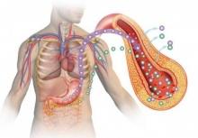 ศัลยกรรมควรเป็นตัวเลือกในการรักษาโรคเบาหวาน