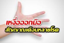 เหงื่อยออกที่่มือ เป็นสัญญาณเตือนของหลายโรค