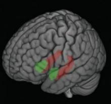 ความเครียดวัยเด็กทำให้สมองเปลี่ยนแปลง