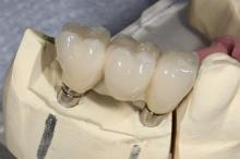 ดูแลรากฟันเทียมอย่างไร
