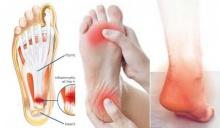 ใครเป็นบ้าง? เจ็บส้นเท้า ฝ่าเท้า ในตอนเช้า หรือตอนลุกขึ้นยืน มาดูวิธีป้องกัน