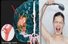 """เคยสงสัยไหม """"ทำไมคนที่เส้นเลือดในสมองแตกถึงมักเกิดในห้องน้ำ"""""""
