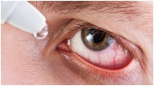 """""""น้ำตาเทียมปลอม""""ทำดวงตาผิดปกติ จริงเหรอ"""