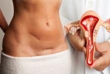 การดูแลรักษาเมื่อตรวจพบเซลล์ผิดปกติจากปากมดลูก