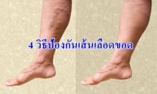 4 วิธีป้องกันการเกิดเส้นเลือดขอด ที่สาว ๆ ควรรู้